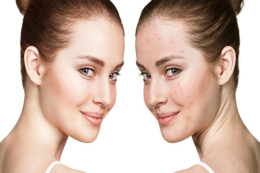 50 Photoshop Actions Retouching Skin BUNDLE, Swatches, Brushes - 2 1 4