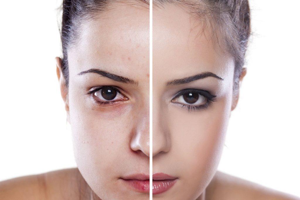 75 Skin Retouching Photoshop Actions - $20 - 3 1 2