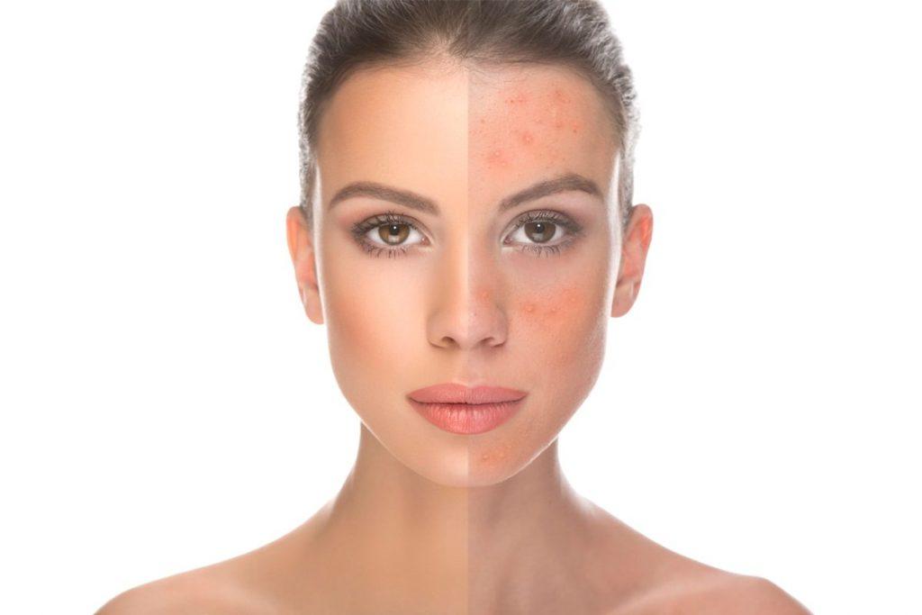 50 Photoshop Actions Retouching Skin BUNDLE, Swatches, Brushes - 3 1 4