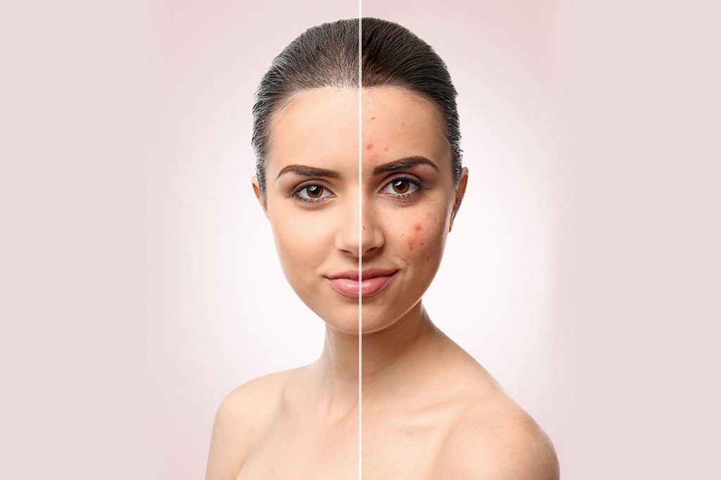 75 Skin Retouching Photoshop Actions - $20 - 4 1 1