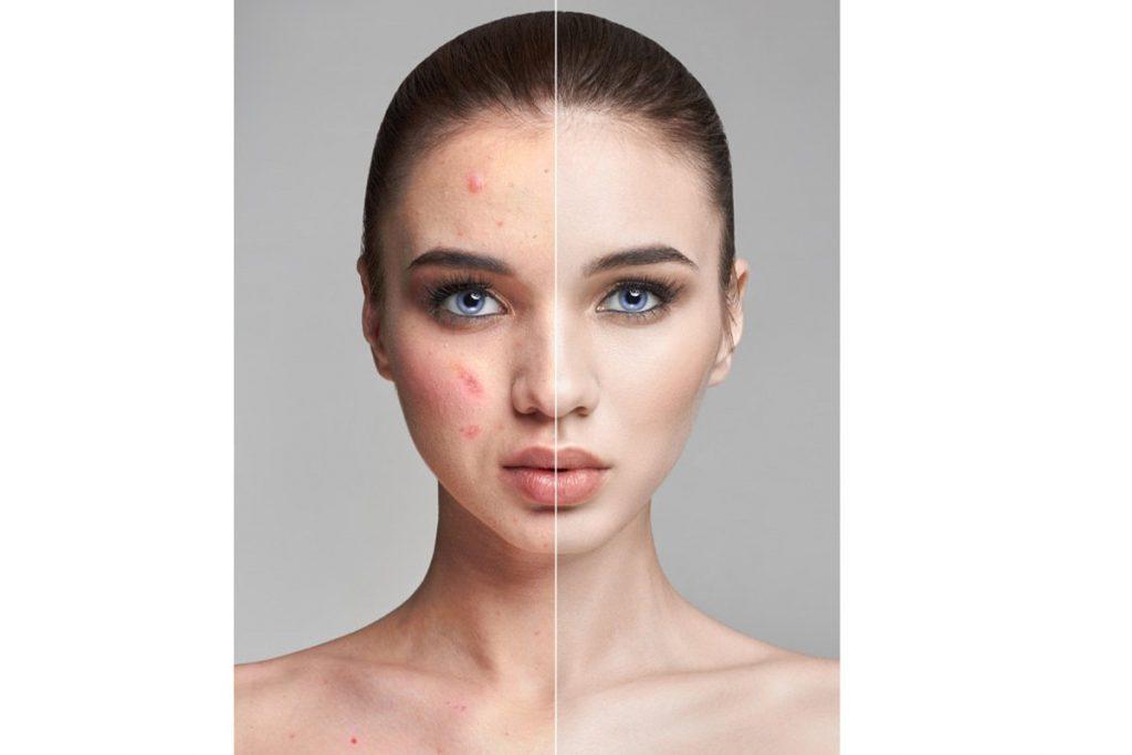 50 Photoshop Actions Retouching Skin BUNDLE, Swatches, Brushes - 4 1 3