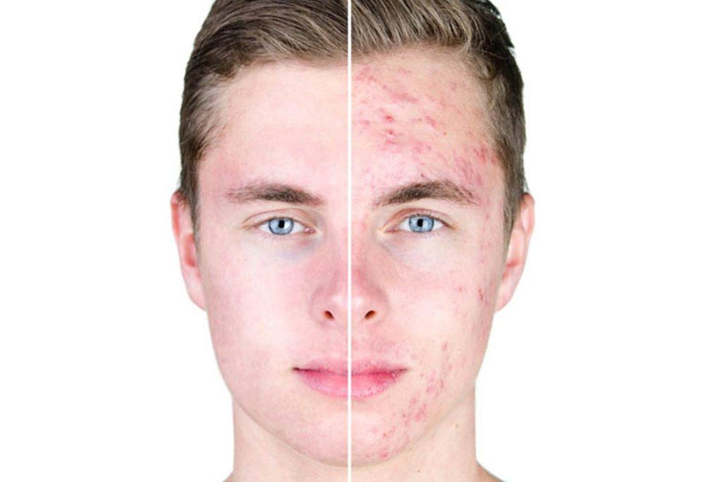 75 Skin Retouching Photoshop Actions - $20 - 5 1 2